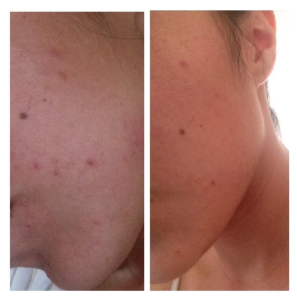 Tips For Taking Acnetame Acne Pills I Hate Acne